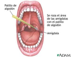 Test Estreptococo