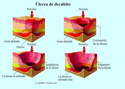 ulceras-de-decubito