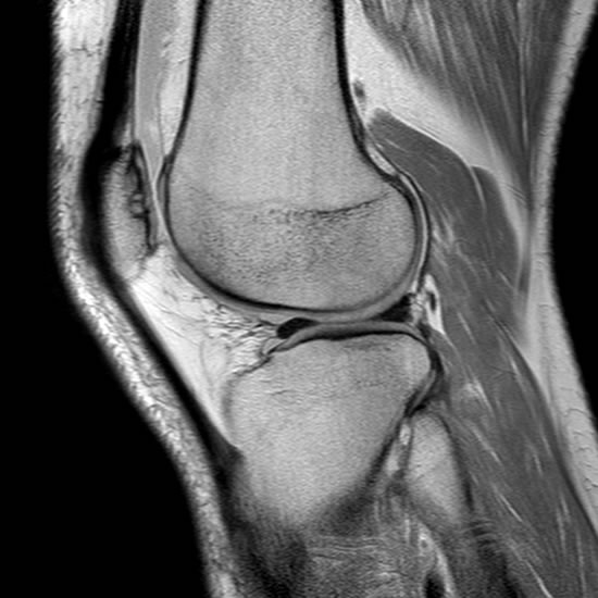 Síndrome de hiperpresión lateral de la rótula mri